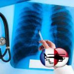 Лечение туберкулеза легких в клиниках за границей: принципы, методы, цены